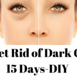 How to Get Rid of Dark Circles in 15 Days-DIY