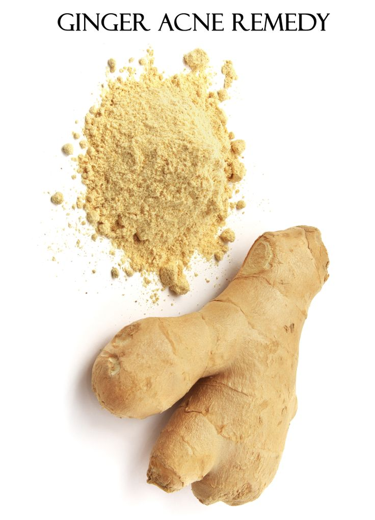 How to Use Ginger for Treating Acne Naturally