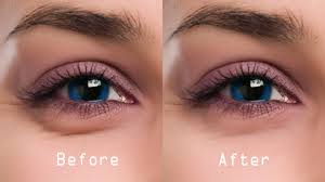 Amazing Tips to Get Rid of Dark Circles Soon