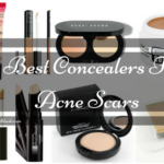 5 Best Concealers For Acne Scars